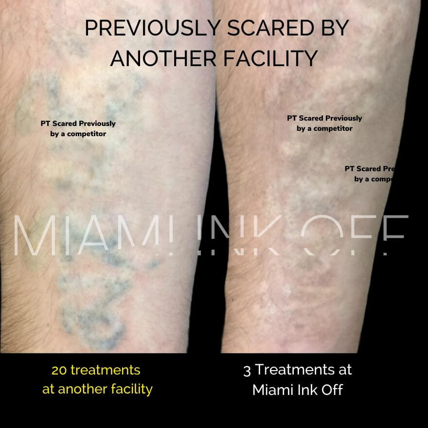 before & after tattoo removal Miami Ink Off 0017