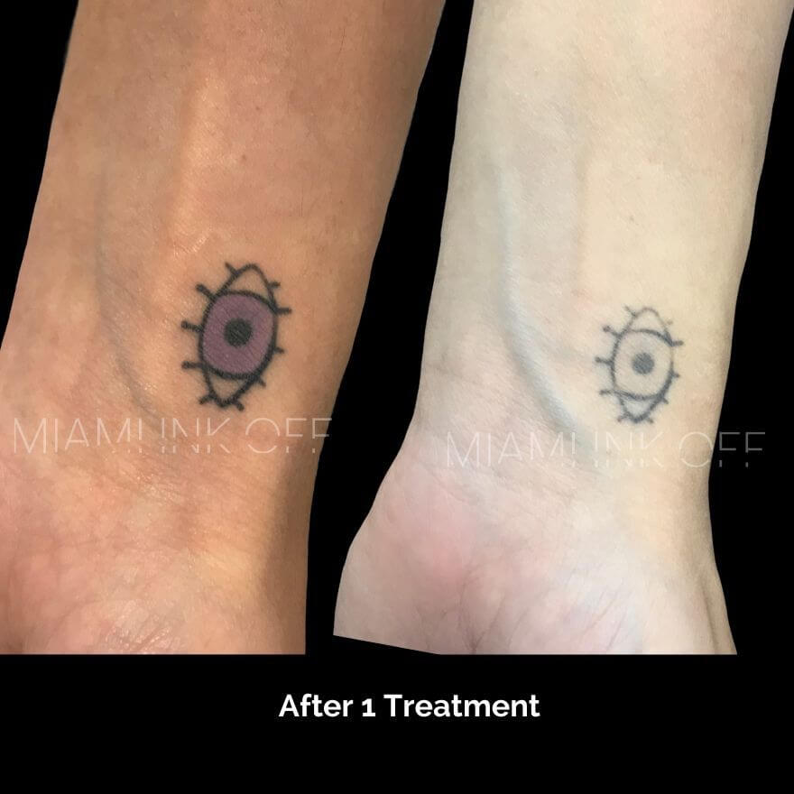 before & after tattoo removal Miami Ink Off 0004