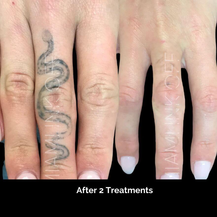 before & after tattoo removal Miami Ink Off 0006
