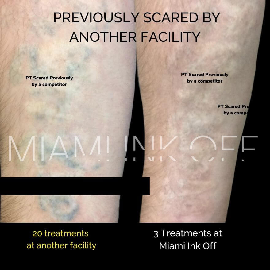 scared before & after tattoo removal Miami Ink Off 0015