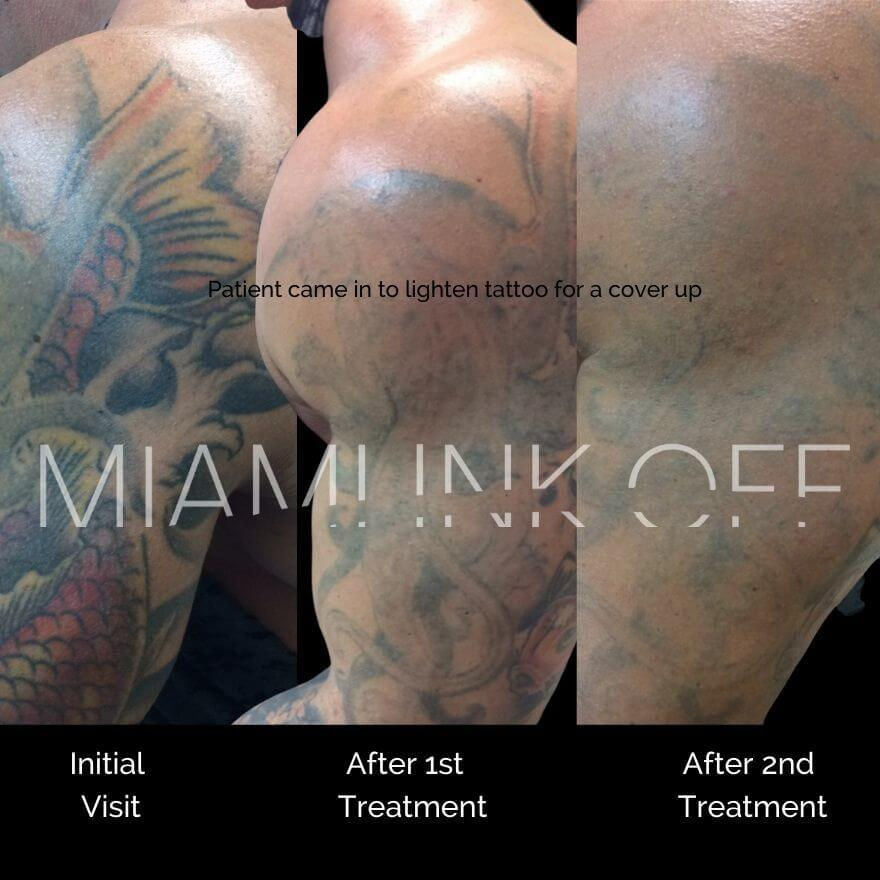 before & after tattoo removal Miami Ink Off 0016